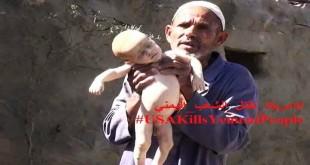 صورة لضحايا غارات العدوان السعودي اليوم نشرت اليوم ضمن هاشتاق (امريكا تقتل الشعب اليمني)