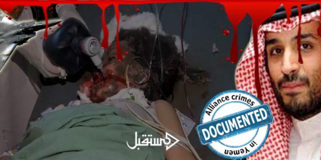 جرائم التحالف السعودي في قتل اطفال اليمن جاليري 9 (5)
