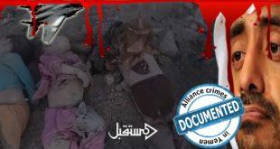 جرائم التحالف السعودي في قتل اطفال اليمن جاليري 9 (6)