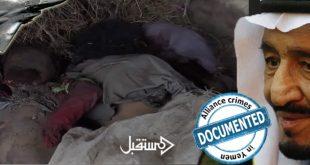 جرائم تحالف العدوان السعودي في قتل اطفال اليمن  (10)