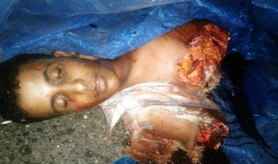 حزء من جثة مدني من ضمن 15 مدنيا تناثرت واحترقت جثثهم جراء الغارة السعودية على سوق حيفان فجر اليوم (المستقبل)