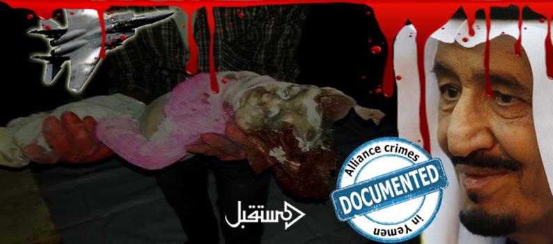 جرائم العدوان السعودي في قتل الاطفال اليمن 2015 (31)